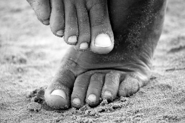 Bolący odcisk na małym palcu – do kogo się udać po pomoc?